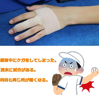 スポーツ外傷の治療について